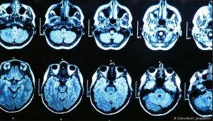 havana-syndrome-brain-scans